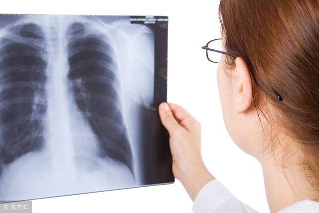 【產前須知】哺乳期間可以照X光嗎?
